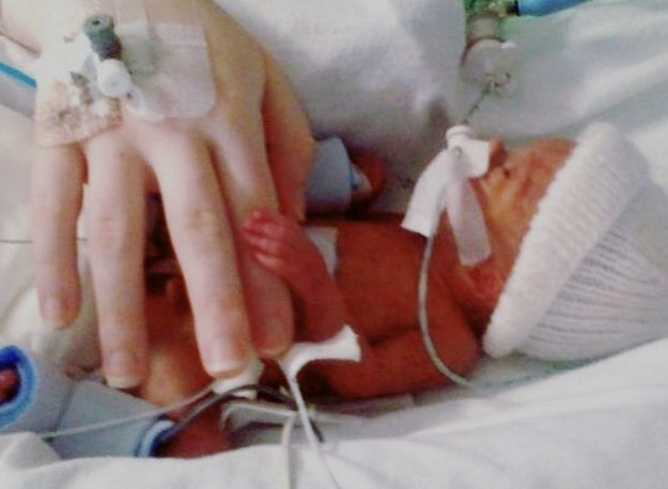 Cooper was born weighing just 1lb 12oz.