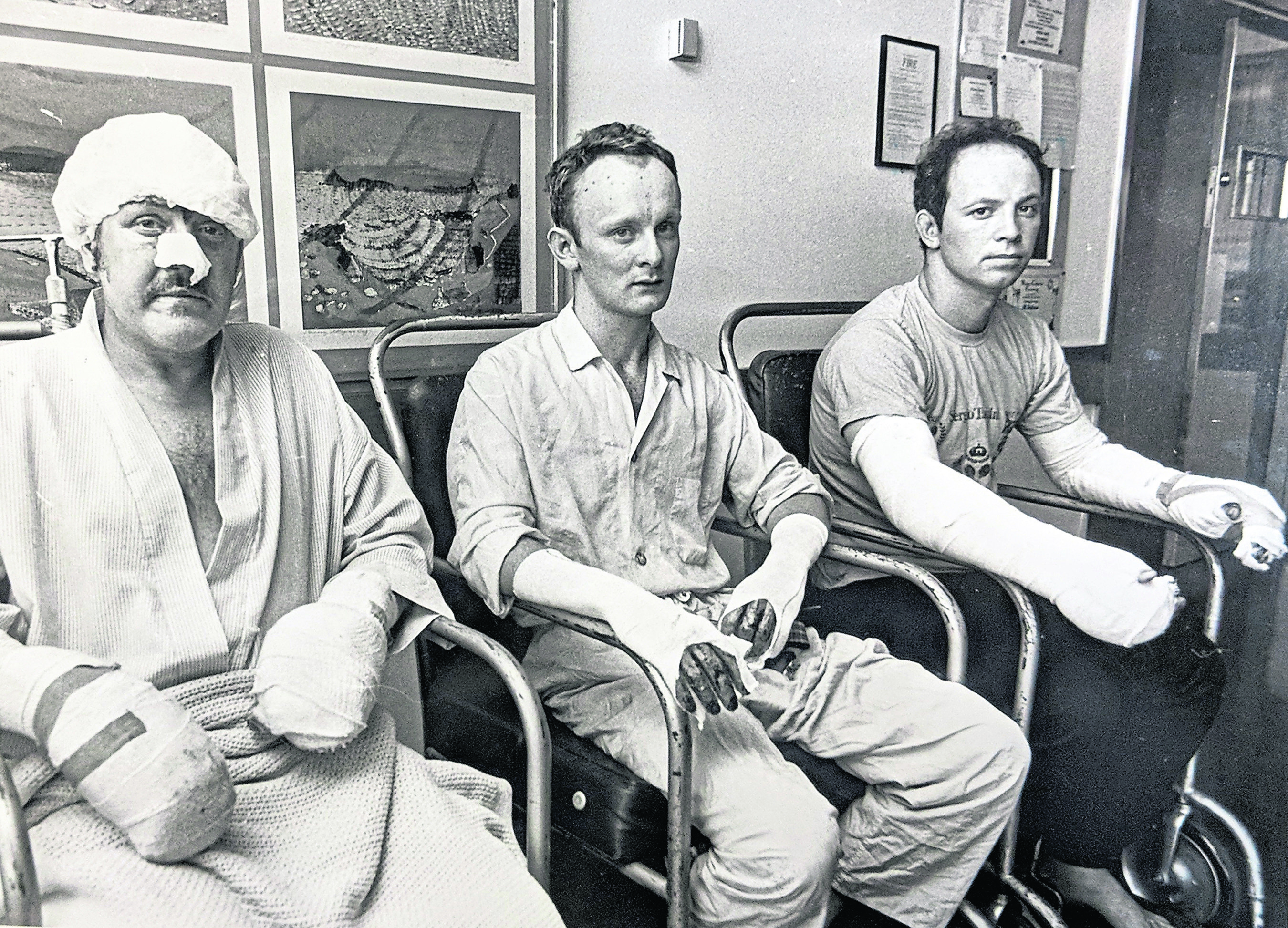 Piper Alpha survivors, including Mark Archibald Reid (centre), father of Marc Reid, being treated for their injuries at Aberden Royal Infirmary's burns unit.