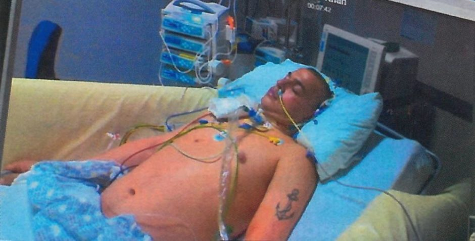 He spent 10 days in an induced coma at Aberdeen Royal Infirmary