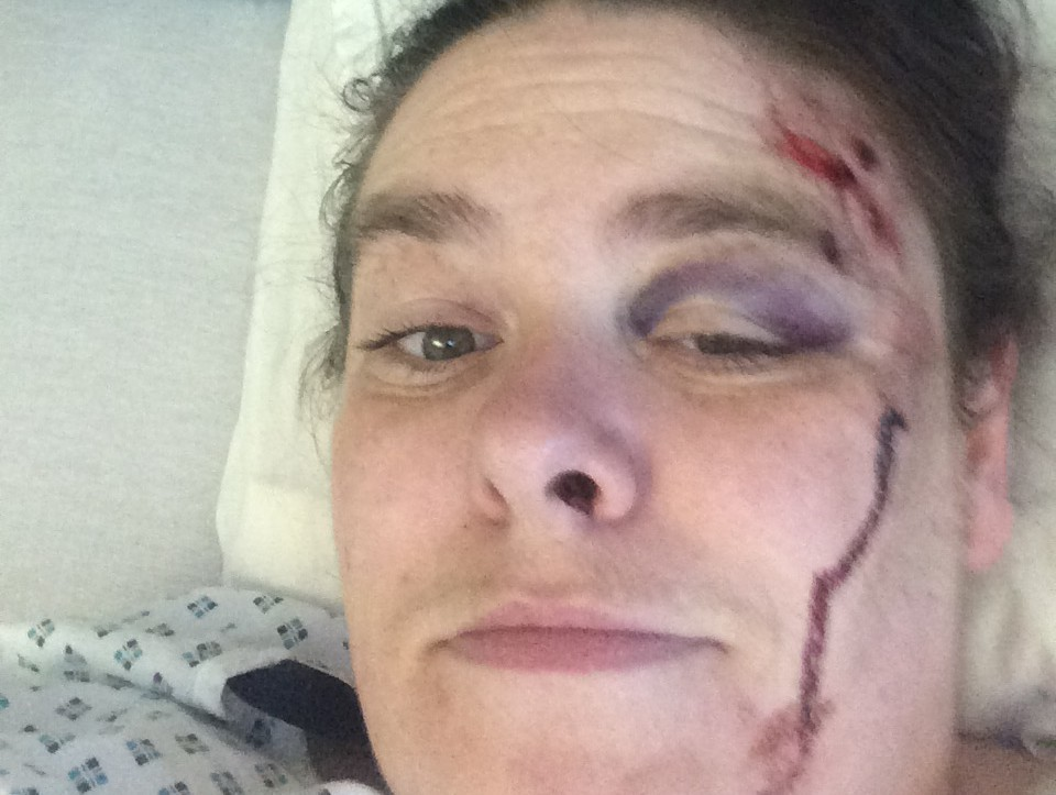 Carole Elphinstone, pictured in hospital, suffered a shattered elbow and fractured pelvis in the incident.