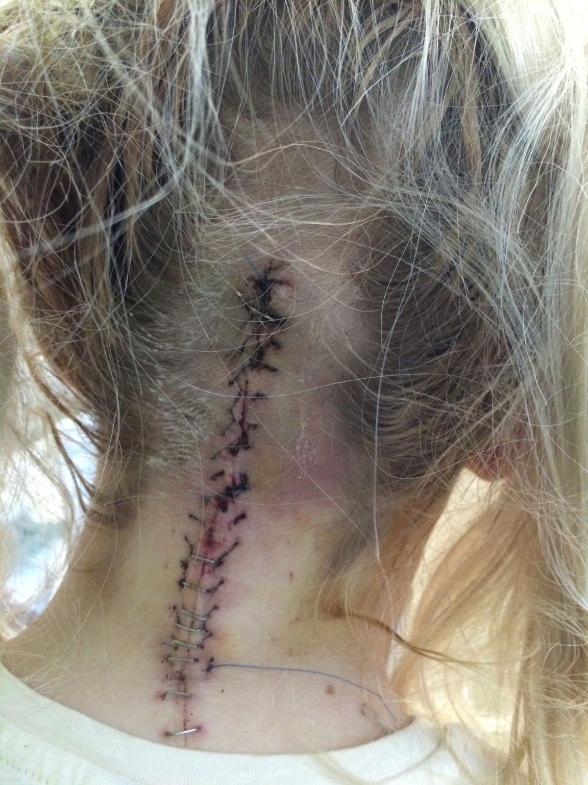 Rebecca's scar from surgery.