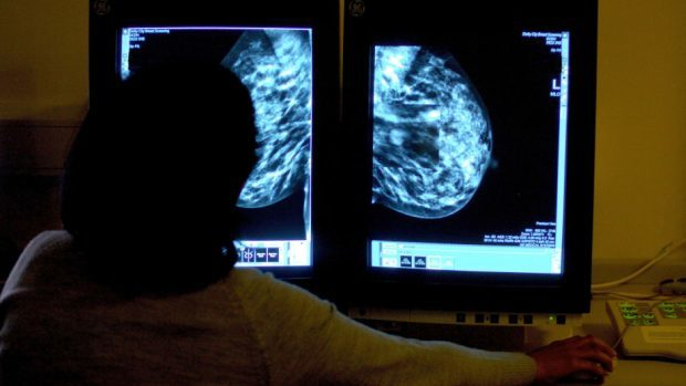 AI could help speed up breast screenings in the north-east