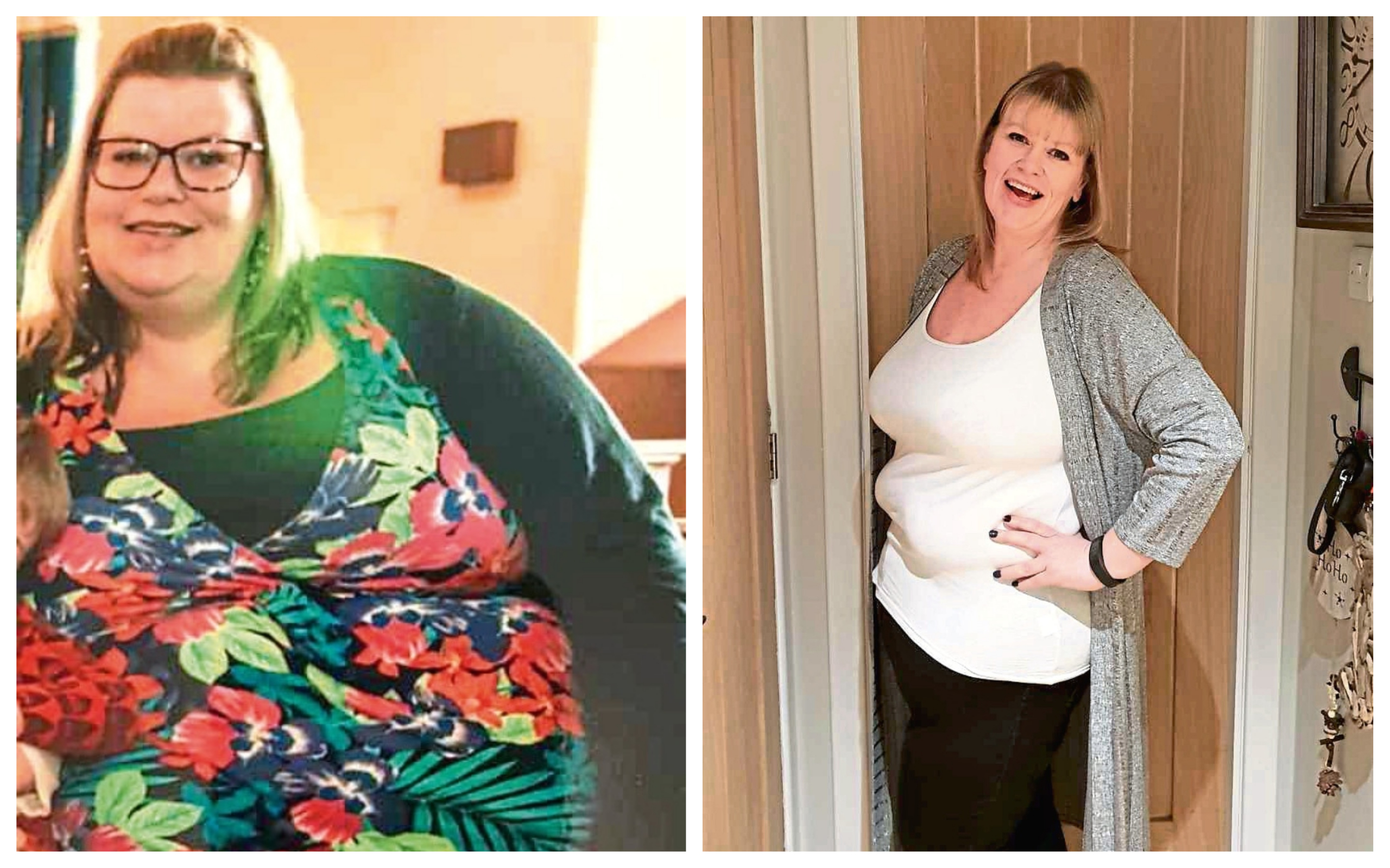 Fiona lost 125lbs