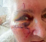 Lorna Sandison. 63, needed 11 stitches to her face after she hit a pothole on her scooter