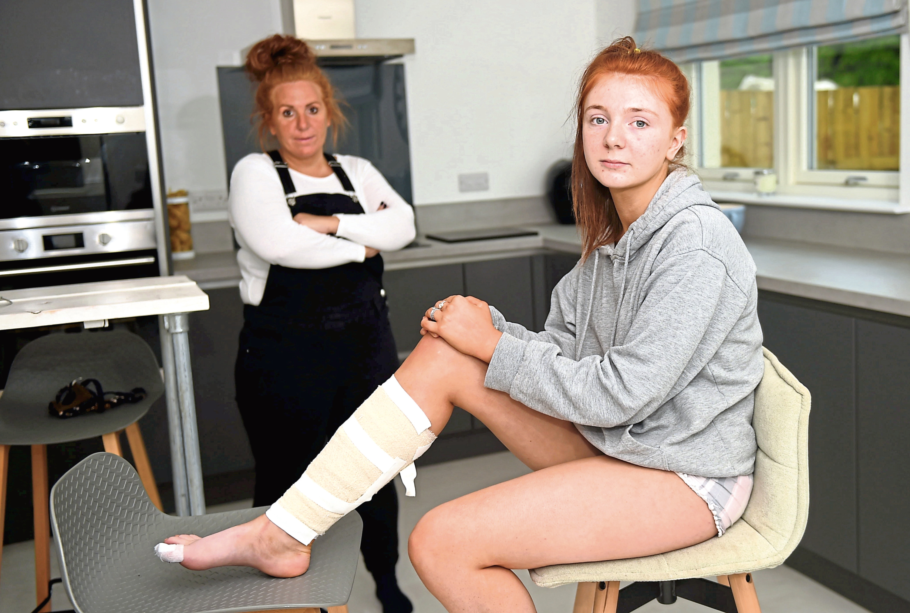 An injured Lois Fleming and her mum Lindsay after the hit-and-run accident