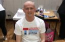 Alex Charlton after shaving his head