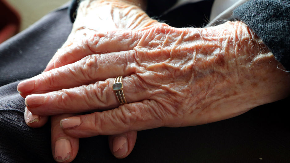 Age Scotland has raised concerns over elderly people's ability to access key items.