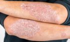 Psoriasis Awareness Week starts on Thursday