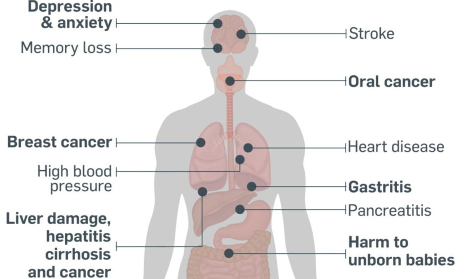 Our guide shows the health risks and effects of alcohol on the body.