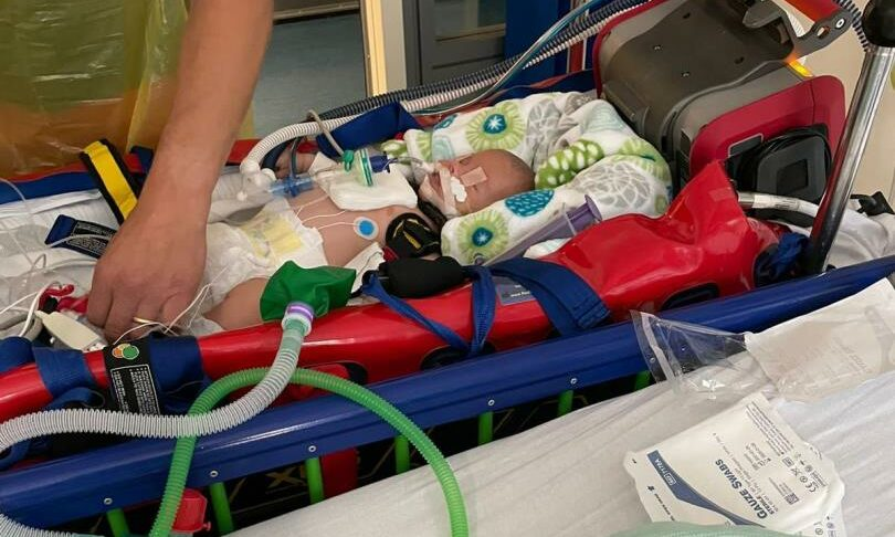 At nine weeks old, Oliver was placed in an induced coma and ventilated to help his breathing, after getting RSV and becoming seriously ill.