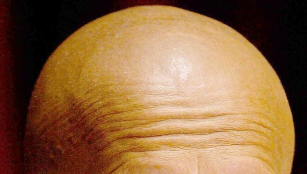 Premature balding a 'bigger risk factor for heart disease than obesity'