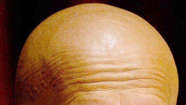 Premature balding a 'bigger risk factor for heart disease than obesity'