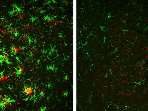 Alzheimer's brain plaque buildup reversed in study with mice