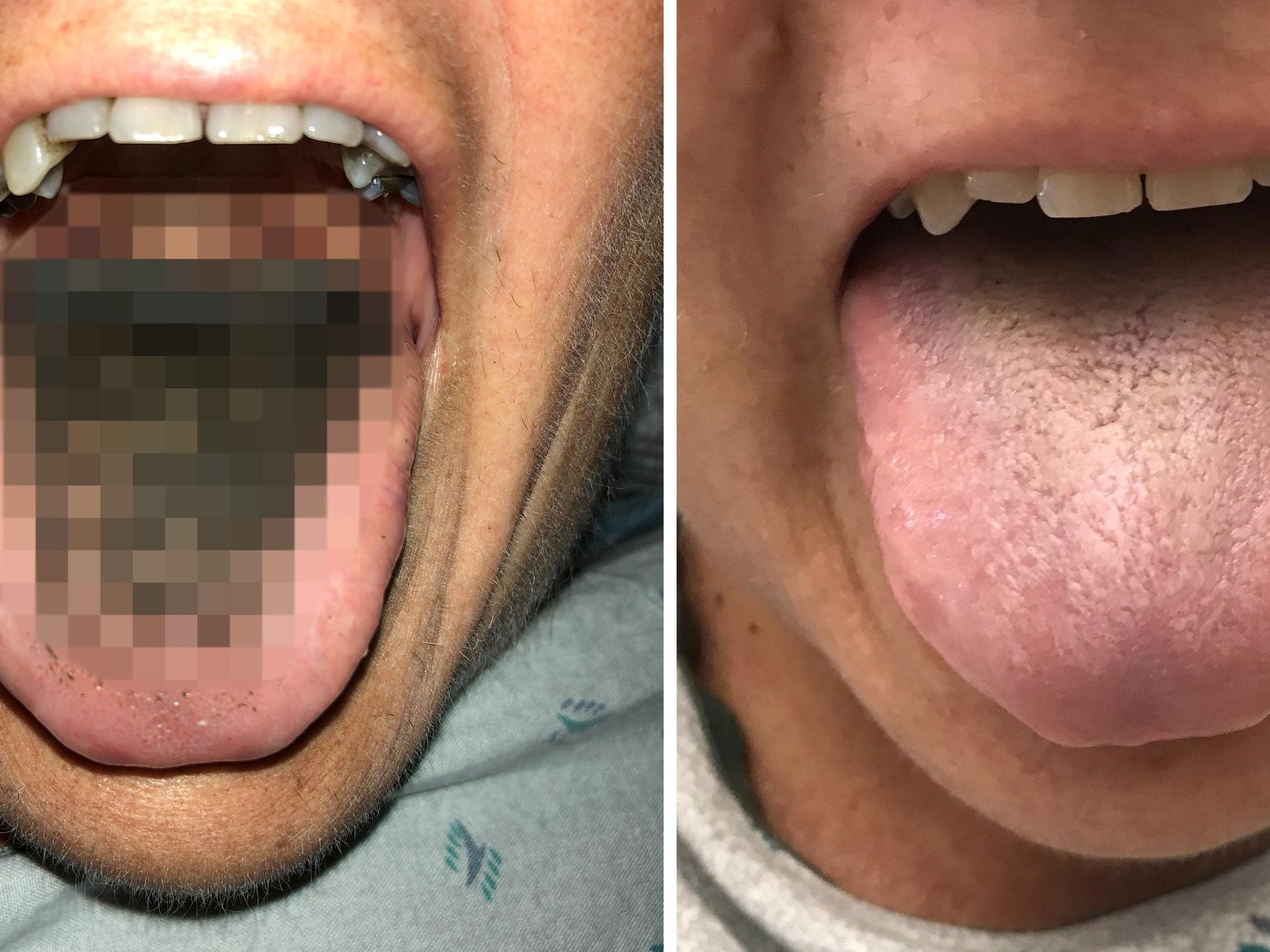 A rare case of black hairy tongue has been treated in the ...
