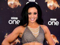 Strictly's Amy Dowden has revealed her secret Crohn's battle (Ian West/PA)