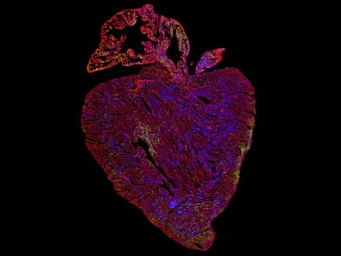 Adult mouse heart after activation of proteins vital for cell replication (Dr Cathy Wilson/ University of Cambridge/PA)