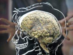 Scientists have identified more than 200 genes that work together to drive the growth of glioblastoma, an aggressive type of brain cancer (Ben Birchall/PA)