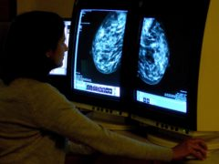 Cancer survival rates increased by roughly 2% in Scotland, Public Health Scotland figures suggest (Rui Viera/PA)