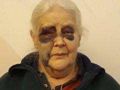 Ida Brown was left badly bruised by the attack (Northumbria Police/PA)