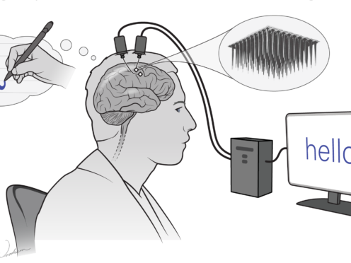 A study shows a computer chip allows a paralysed man to write on screen using his brain (F Willett et al/Nature 2021/Erika Woodrum)