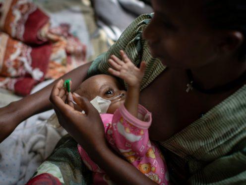 Birhan Etsana, 27, from Dengelat, uses a nasogastric tube to feed her malnourished baby, Mebrhit (AP)
