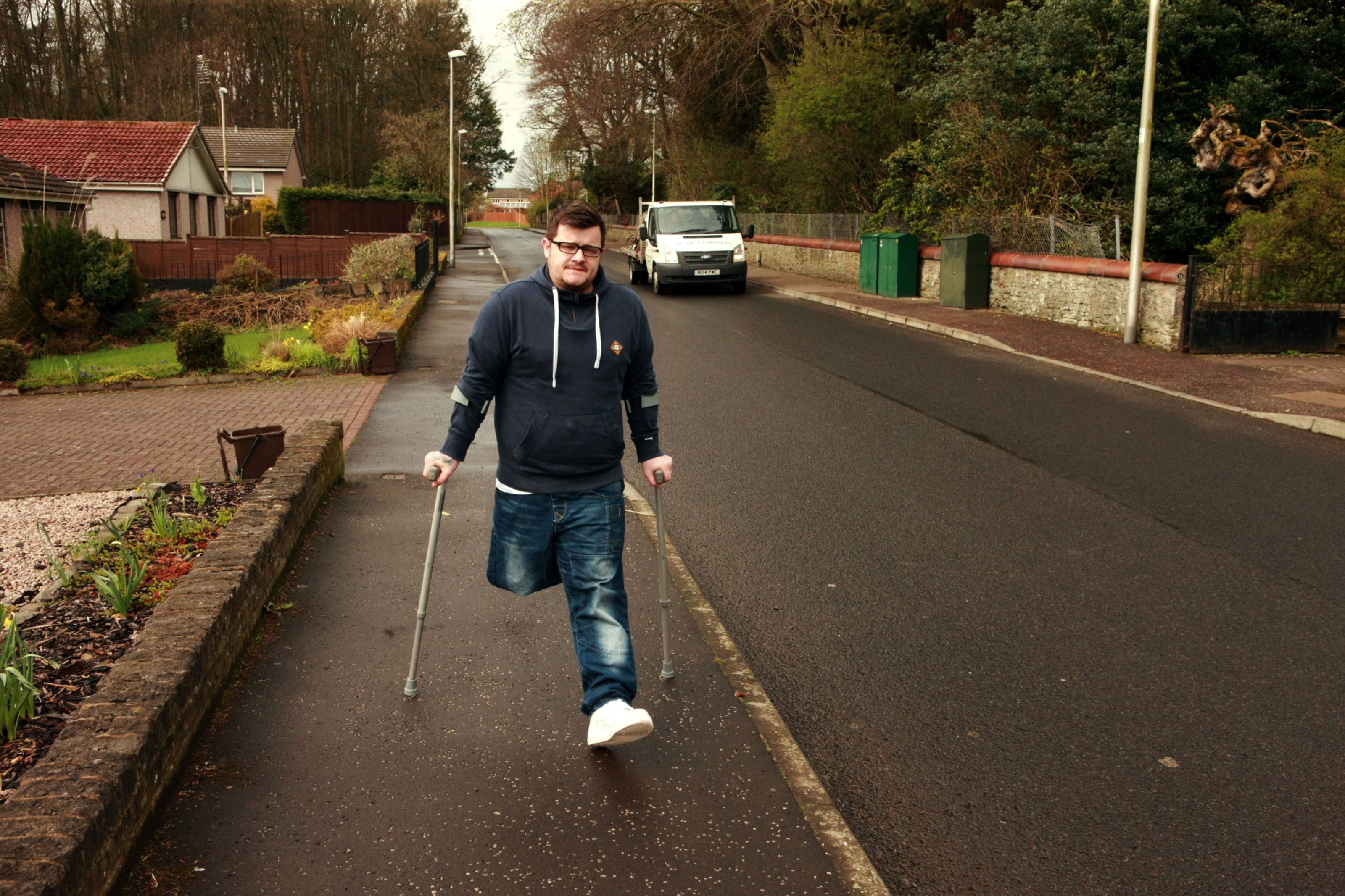 Tommy McKay had his leg amputated when he was just nine. He now walks using crutches.