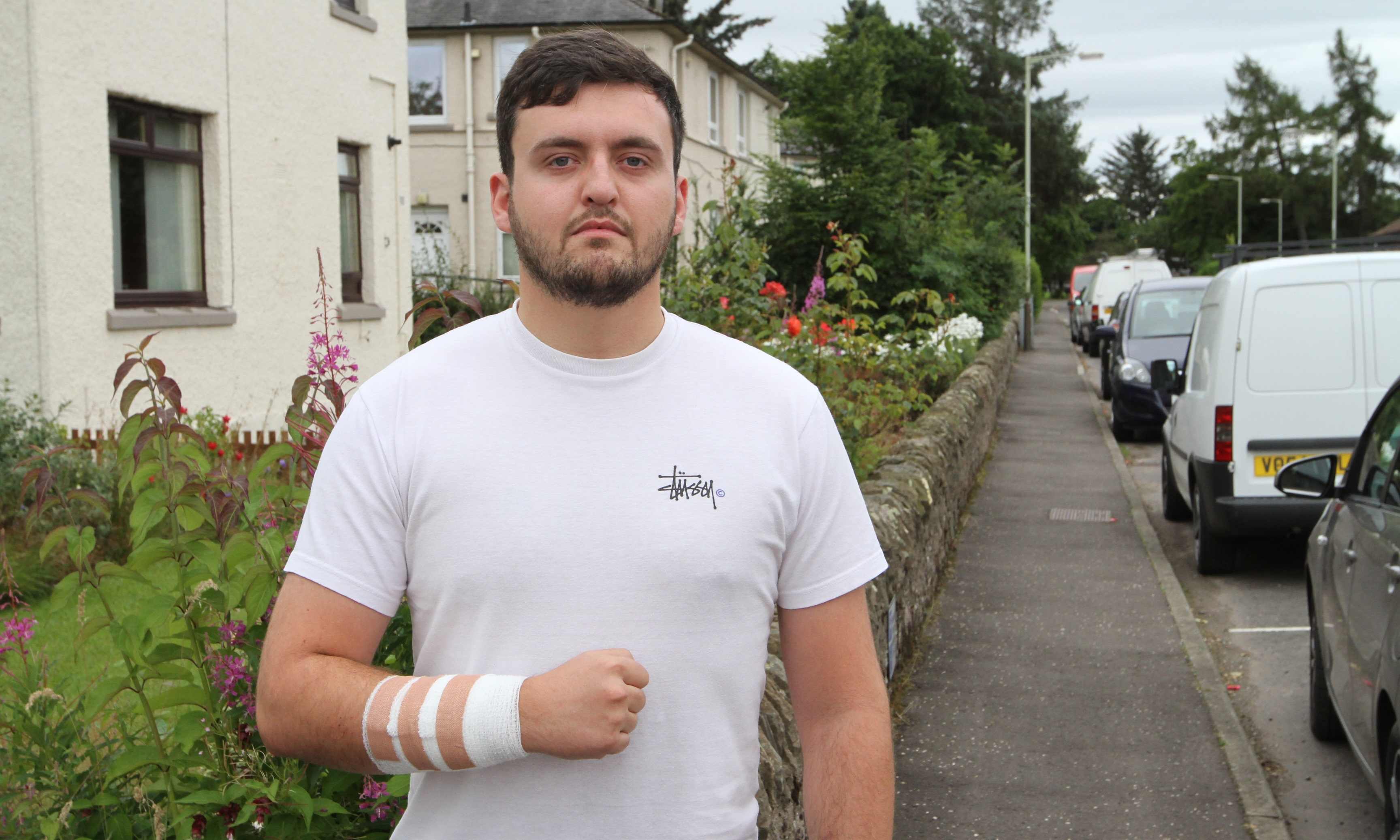 Darren was treated for puncture wounds at Ninewells after the attack
