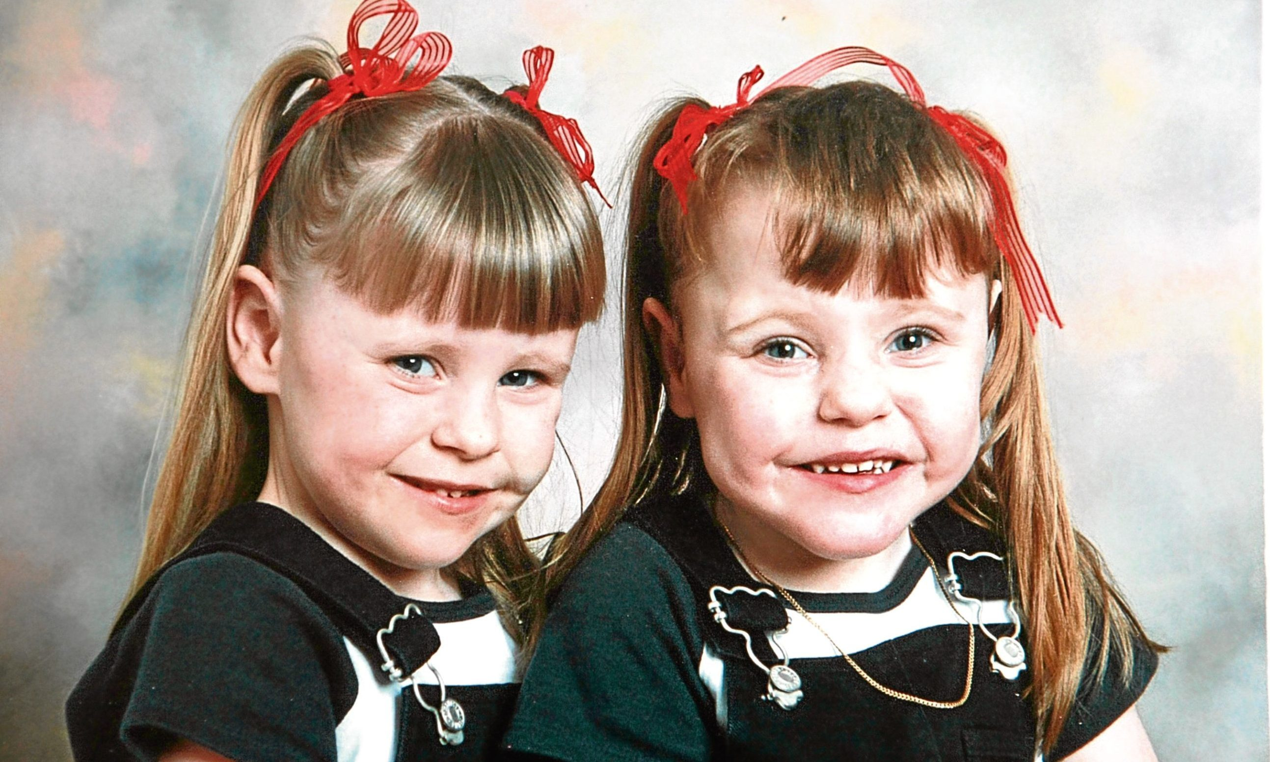 Premature twins Rachel and Sarah in their school days.