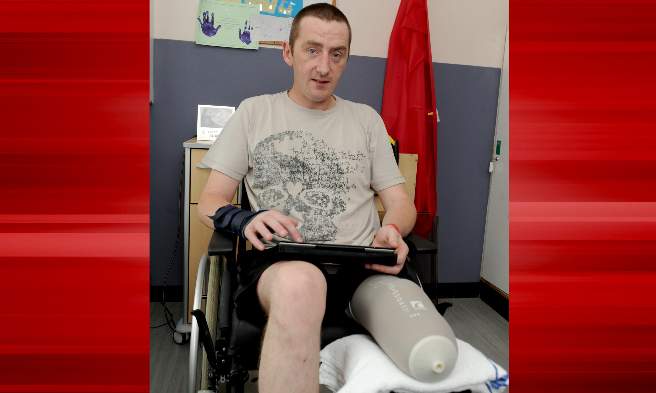 Greig Yorke during his time in Ninewells Hospital