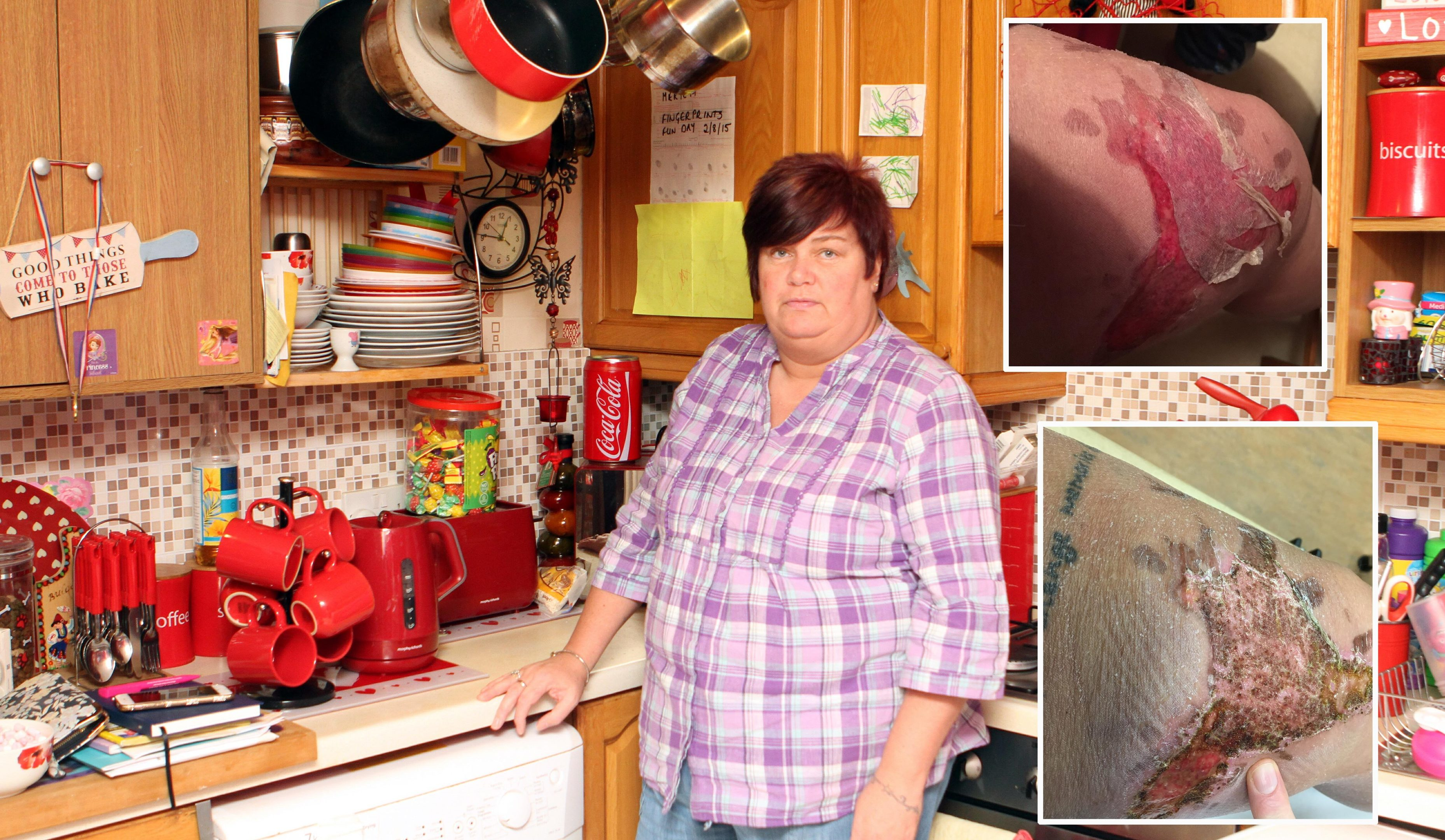 Jean Lawson in the kitchen where the incident took place and, right, her injuries.