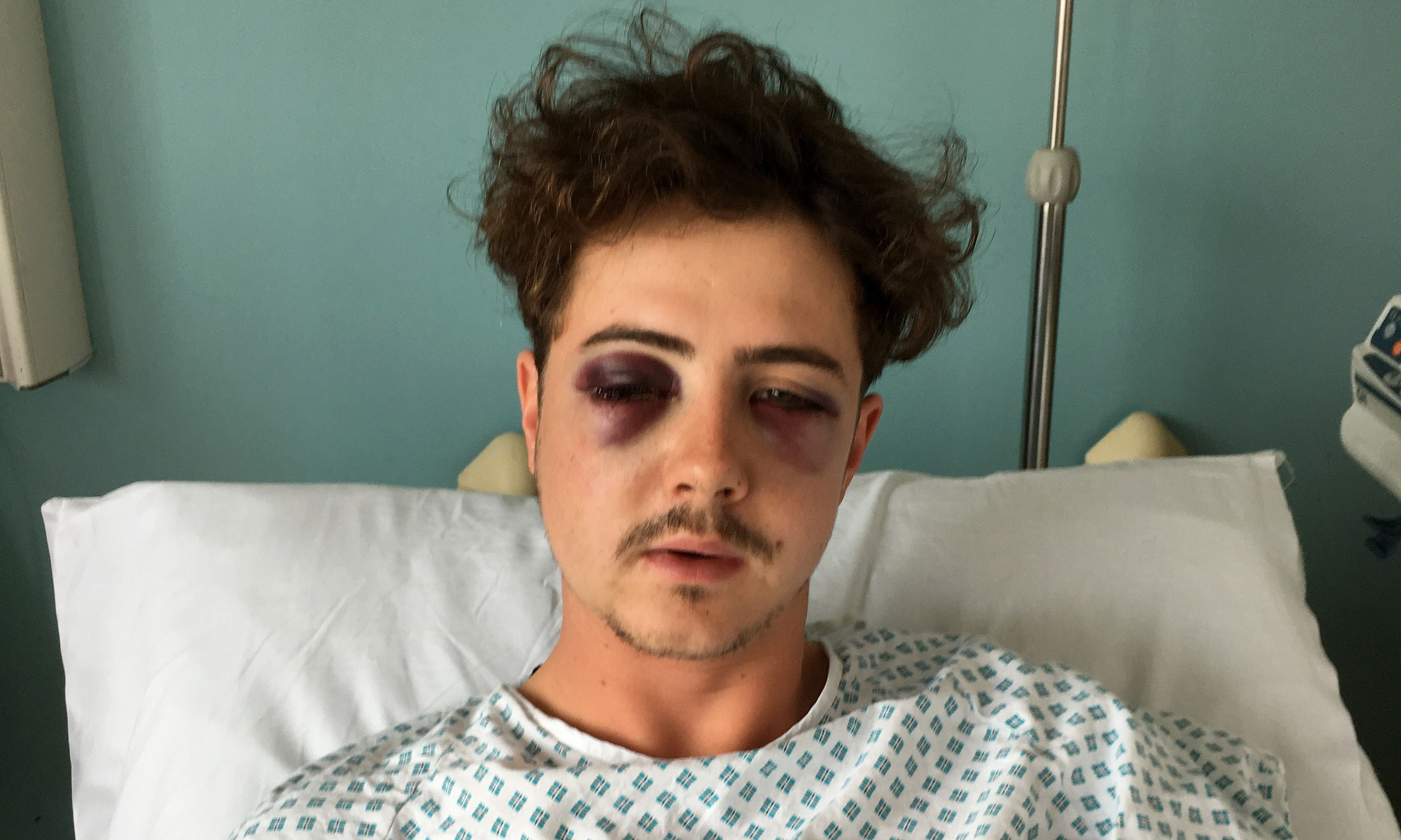 Michael Voller who was left with serious injuries after an unprovoked attack by a fellow Spurs supporter