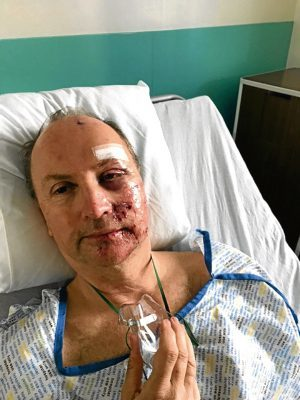 Muirdrum cyclist Ali Simpson, 57, who was involved in an accident at Newbigging on Monday 8th June at 7pm. Pics show Ali cycling in France during a trip, shortly after the accident and in recovery in hospital