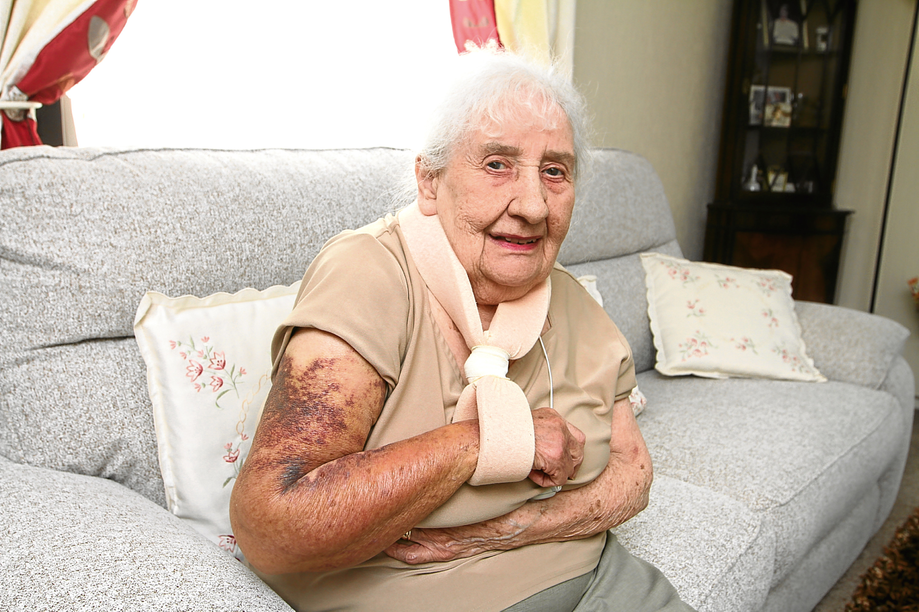 Grace recovering at home with her arm in a sling after her fall in Dundee city centre.