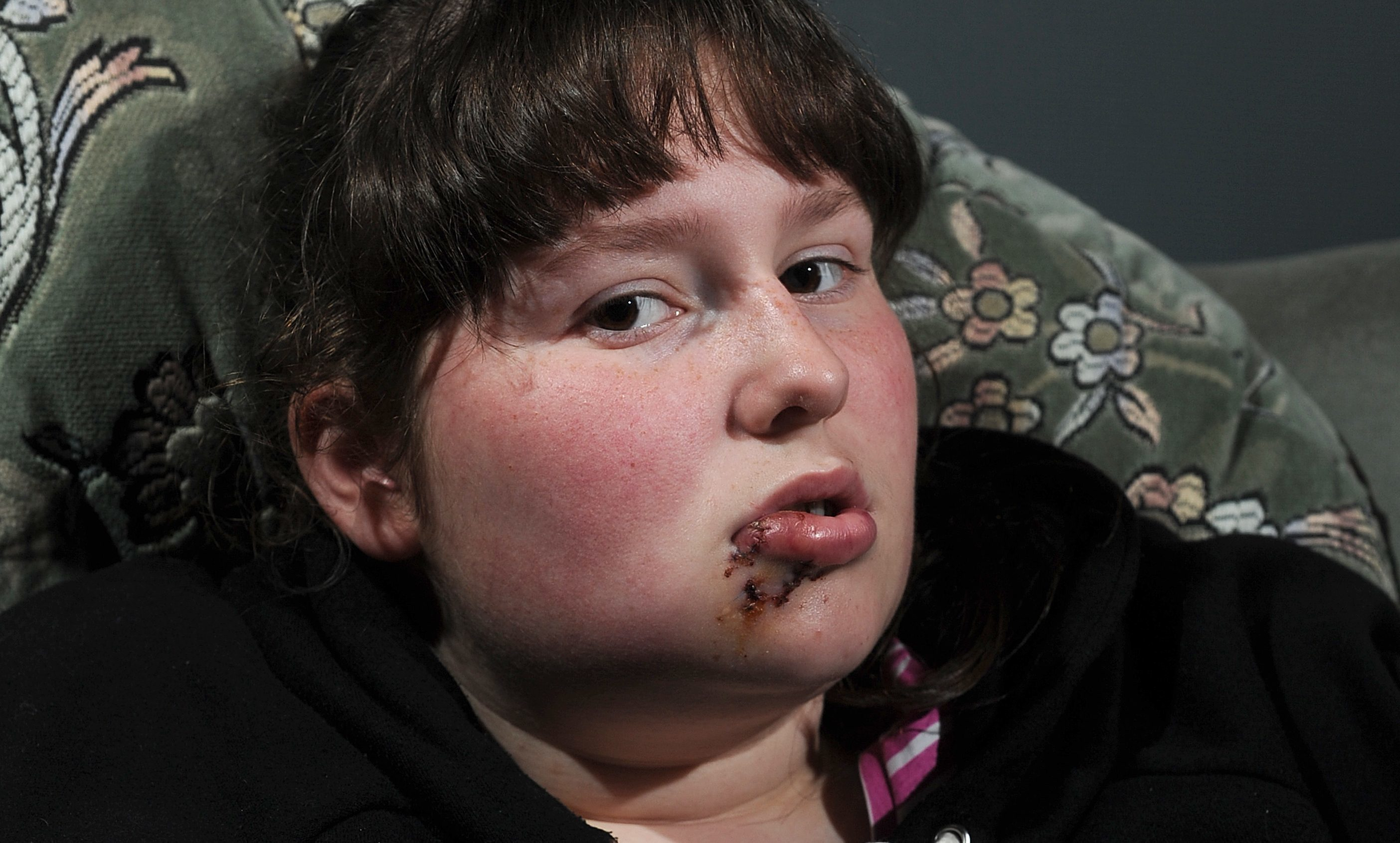 Caitlin Agnew was bitten in the face by a staffie and required surgery.