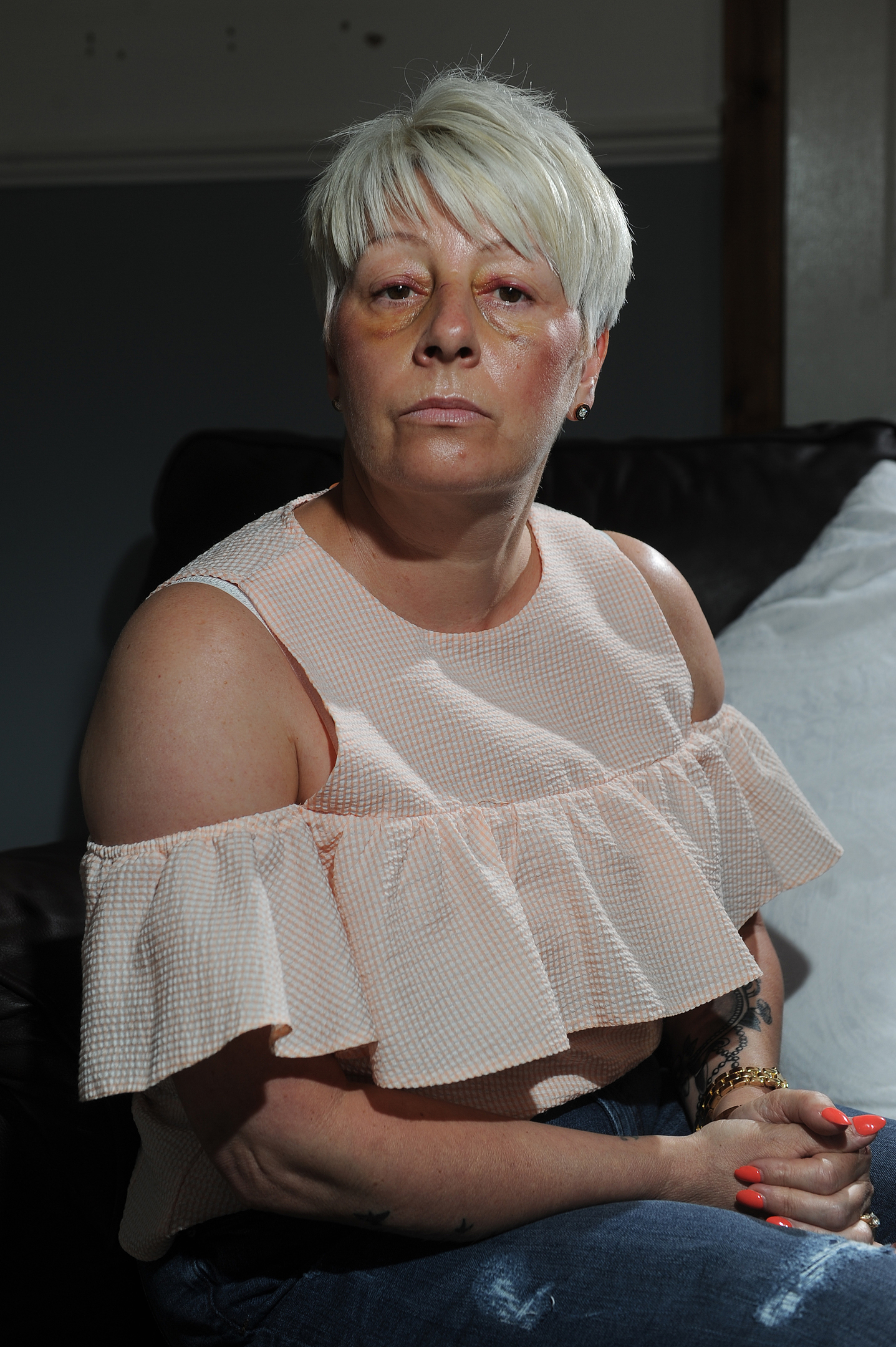 Telegraph News - News - Ryan Tute story; Dundee United supporter Madelaine Smith was attacked by Hamilton fans last Thursday after the playoff match outside Tannadice. She suffered a broken nose. Picture Shows; Madelaine Smith, 94 Eastwell Road, Lochee, Dundee, Tuesday 30th May 2017