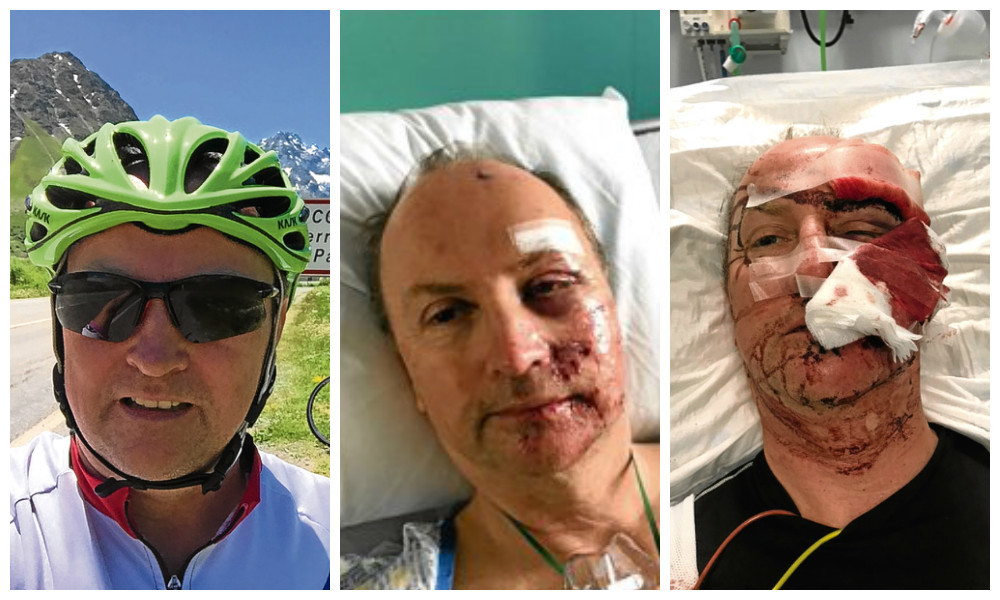 Muirdrum cyclist Ali Simpson, 57, in France during a trip and in Ninewells Hospital with injuries to his face after the accident
