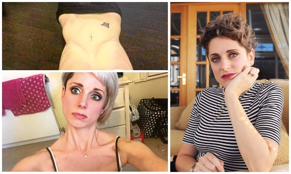 Carnoustie mother-of-two Amii Adams has spoken about living with anorexia nervosa