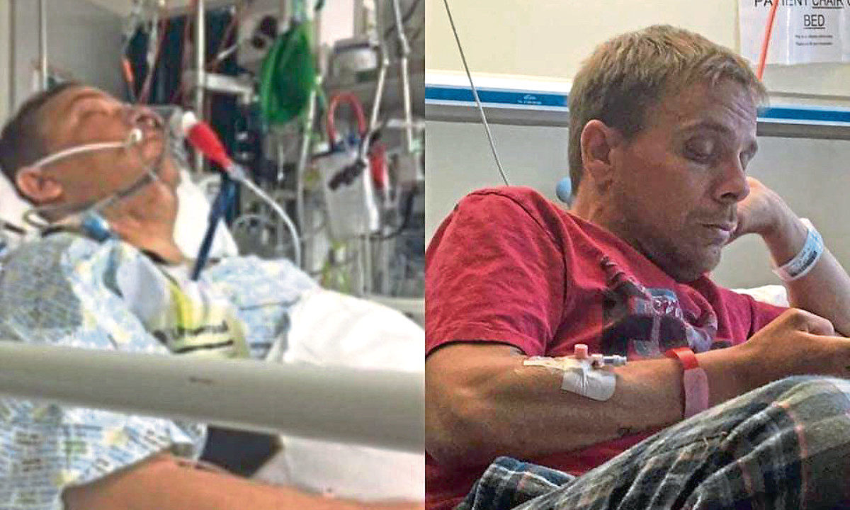 Luke Chapman, before and after his kidney and pancreas transplant