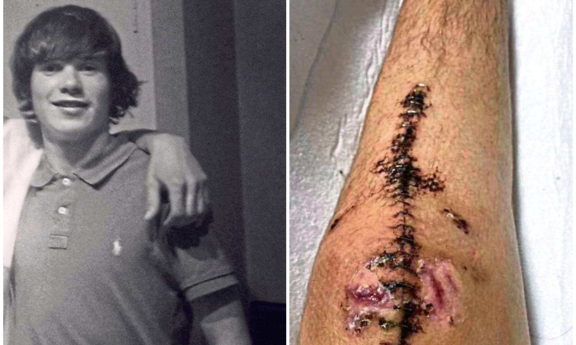 Scott McDonald and one of the injuries he sustained