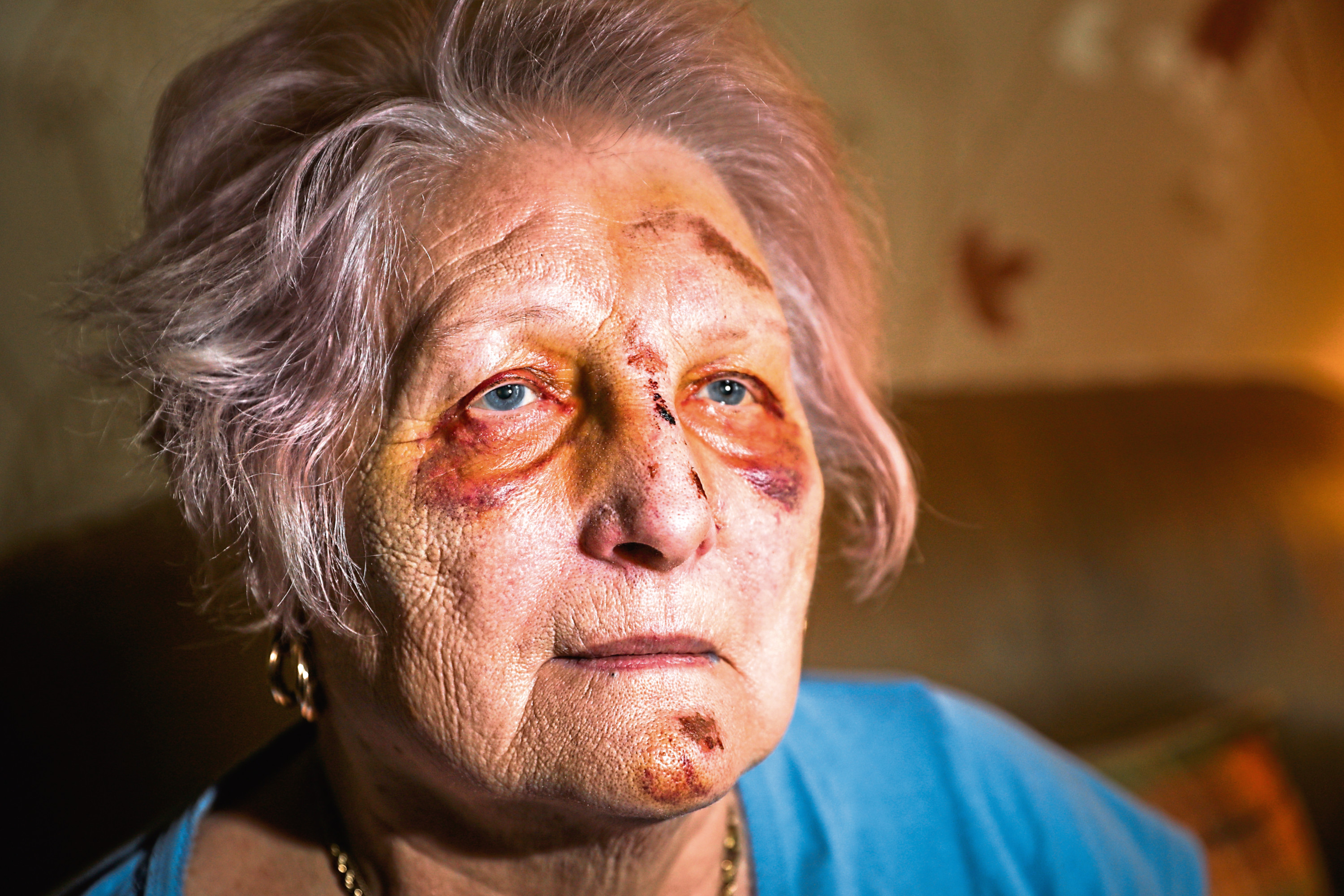 Brenda's face was left badly bruised.