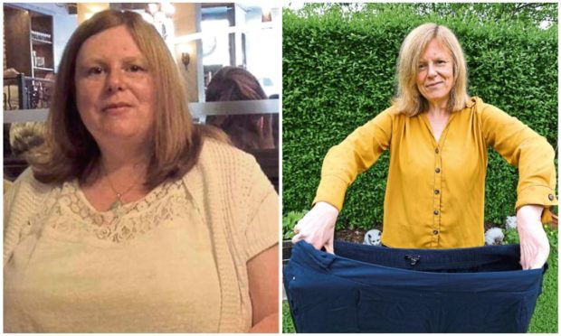 Pamela Craig before and after