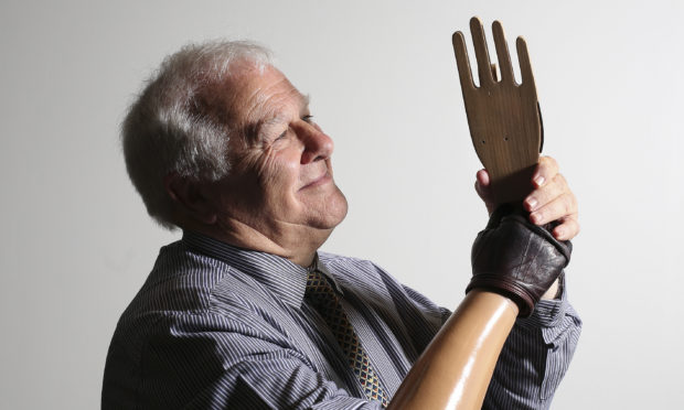 Eddie Small with a prototype hand. He wore a prosthetic limb during his life.