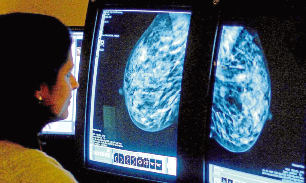 A consultant analyzing a breast cancer patient's mammogram.