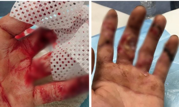 The graphic injuries have been blurred out in these photographs of Connor Penman's wounds.