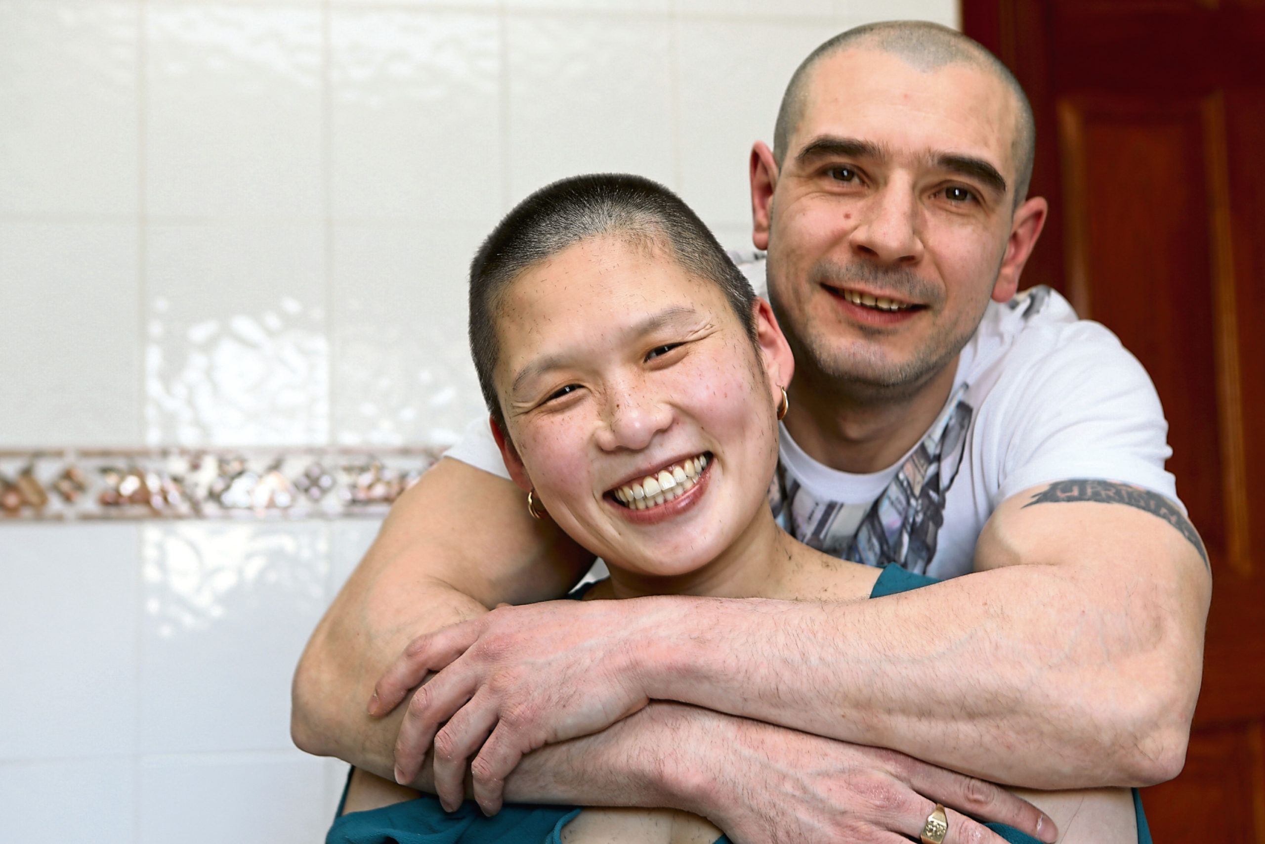 Cecilia Ho at home in Dundee, with her partner Gareth Kinghorn, after her charity head shave for the Bone Cancer Trust.