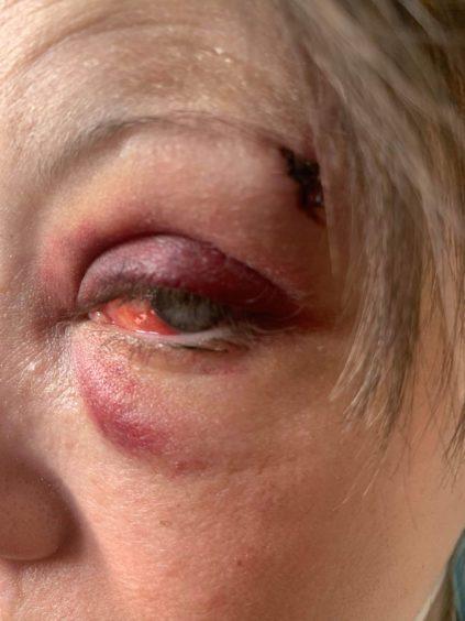 Katie Reid had her eye burst during the assault.