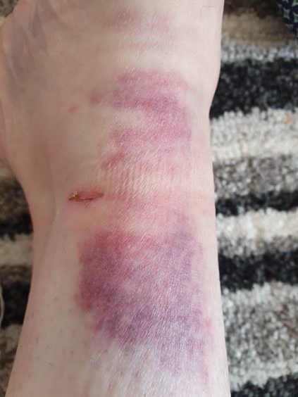 Katie's injuries after the attack.