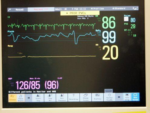 The device is designed to correct an irregular heart rhythm (Tim Ockenden/PA)
