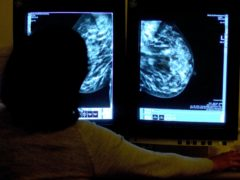 The plan aims to make access to cancer services equal across Scotland (Rui Vieira/PA)