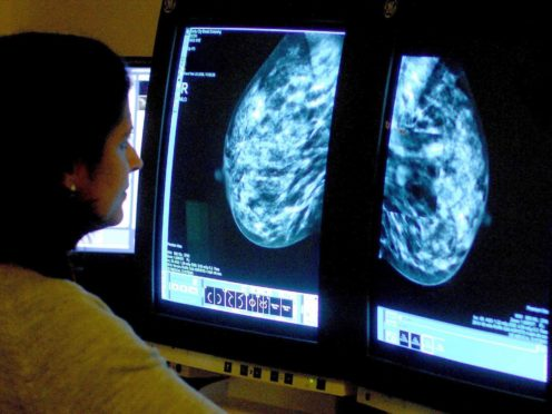 CRUK said that breast cancer deaths reached an all-time low before the pandemic (PA)